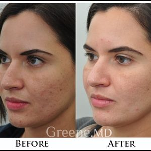 Great acne before after