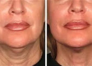 Ultherapy before after from the company