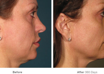 Before after ultherapy results fullface3