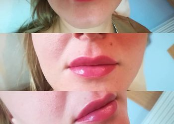 KLINIKA URODY LEWANDOWSKI - powiększanie ust kwasem hialuronowym