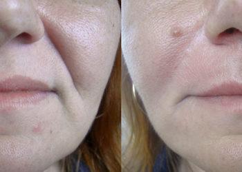 Pracownia Kosmetyczna Pracownia Fryzjerska - wypełnianie bruzd nosowo-wargowych kwasem hialuronowym plus efektu tzw. marionetki