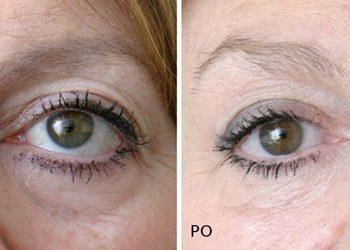 Pracownia Kosmetyczna Pracownia Fryzjerska - wypełnianie kwasem hialuronowym okolicy oczu