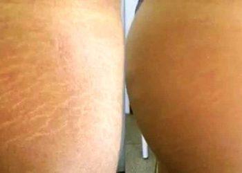 DAY SPA INNOWACJE - laser frakcyjny ablacyjny co2 - usuwanie rozstepów brzuch/uda/ramiona/plecy