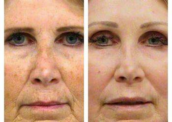 DAY SPA INNOWACJE - laser frakcyjny ablacyjny co2 - odmładzanie i lifting - cała twarz do linii żuchwy