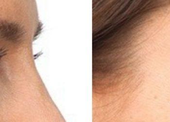 Martess Hair&Beauty - botox