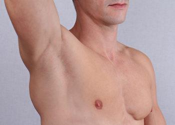Centrum Kosmetologii Kirey Gliwice - depilacja woskiem lycon - pachy