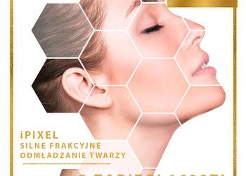 J'adore Instytut Kraków - promocja! ipixel peeling laserowy twarzy / laser skin peeling