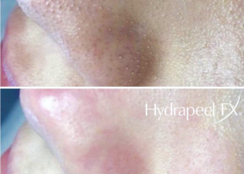 Hydrapeelafter4purifyingtreatments