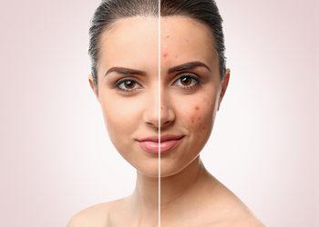 Centrum Kosmetologii Kirey Gliwice - zabieg oczyszczająco- normalizujący na kosmetykach z linii psc