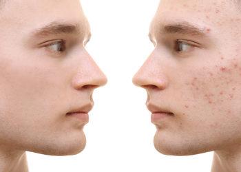 Centrum Kosmetologii Kirey Gliwice - zabieg oczyszczająco- normalizujący na kosmetykach linii psc