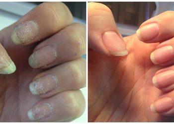 Pracownia Kosmetyczna Pracownia Fryzjerska - ibx jedyna odżywka wchodząca w głąb paznokci