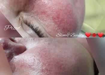 Slim&Beauty - estgen + sonoforeza i maska z bioplacenta - zabieg bankietowy