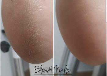 Blondi Nails - pedicure
