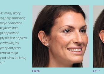 Klinika JustSkin  - juvederm volite   … ekskluzywna mezoterapia, która daje efekty na 9 miesięcy,  oraz wypełnienie bruzd na szyi