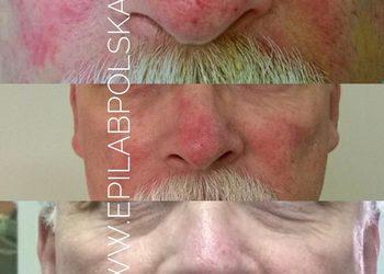 M Estetic- Laser & Beauty Clinic - twarz.