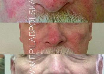 M Estetic- Laser & Beauty Clinic - twarz plus szyja
