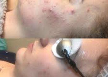 M Estetic- Laser & Beauty Clinic - laserowe leczenie trądzik odwrócony twarz