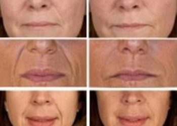M Estetic- Laser & Beauty Clinic - fotoodmładzanie szyja