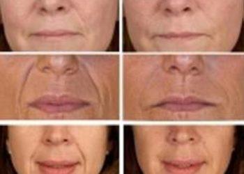 M Estetic- Laser & Beauty Clinic - fotoodmładzanie twarz