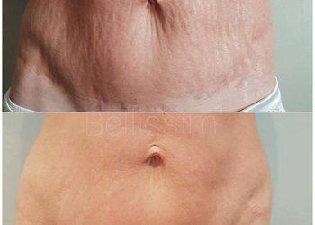 M Estetic- Laser & Beauty Clinic - perfekcyjne ciało bloomea- likwidacja rozstępów i blizn