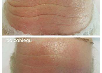 M Estetic- Laser & Beauty Clinic - perfekcyjna twarz bloomea