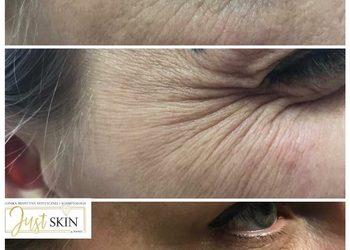 """Klinika JustSkin  - redukcja zmarszczek mimicznych toksyna botulinowa tzw. """"botoks"""""""