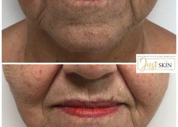 Klinika JustSkin  - lifting twarzy