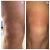 Before and after  knee