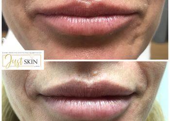 Klinika JustSkin  - modelowanie kształtu ust