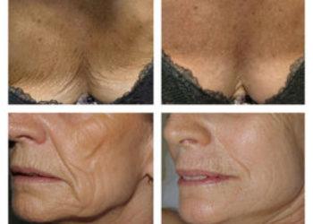 SHE DAY SPA&HAIR DESIGN - prx-t33 rewitalizacja skóry bez igieł