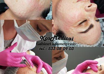 KosMedical - mezoterapia igłowa twarz