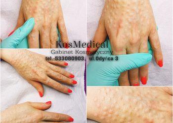 KosMedical - mezoterapia igłowa dłonie