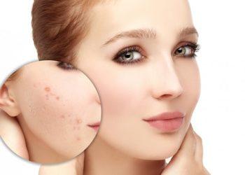 Pracownia Kosmetyczna Pracownia Fryzjerska - zabieg dla cery trądzikowej i prolematycznej
