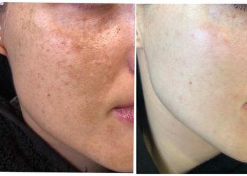 M Estetic- Laser & Beauty Clinic - redukcja przebarwień bloomea