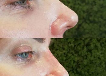 KLINIKA URODY LEWANDOWSKI - korekta nosa kwasem hialuronowym