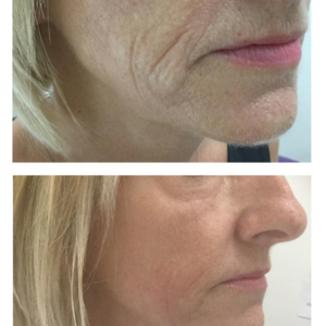 Cheek skin tightening