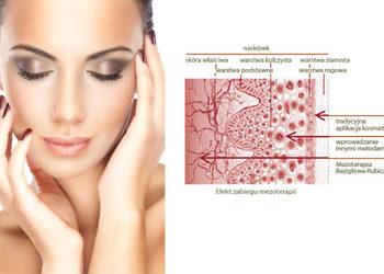 KCM Beauty & Medical Spa  - mezoterapia mikroigłowa t+sz+d (dermo roller)
