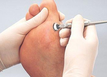 KCM Beauty & Medical Spa  - pedicure podologiczny