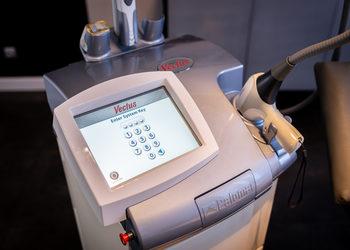 Mariposa Med-Spa - depilacja laserowa – skronie