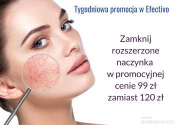 Efectivo Gabinet Kosmetologiczny Studio Wizażu i Charakteryzacji - apillus termokoagulacja zamykanie naczyń