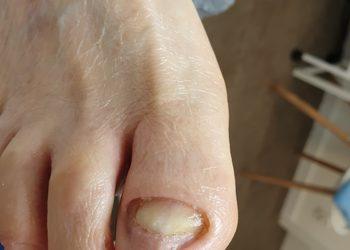 Centrum podologii i diagnostyki stóp PodoLog - oczyszczenie paznokcia zmienionego chorobowo
