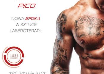 Mariposa Med-Spa - usuwanie tatuażu