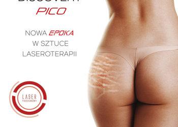 Mariposa Med-Spa - usuwanie blizn laserem picosekundowym