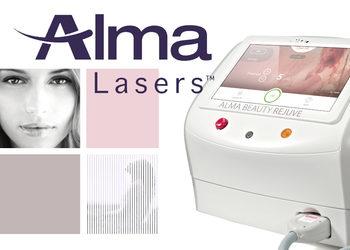 Mariposa Med-Spa - leczenie rumienia i trądziku różowatego na twarzy laserem alma harmony rejuve
