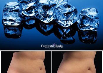 Instytut Urody Fantastic Body - kriolipoliza de lux