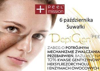 Salon Kosmetyczny Princess - depigen peel - skuteczne zwalczanie przebarwień