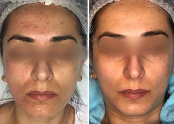 GABINET KOSMETOLOGICZNY KAMILJA - mezoterapia mikroigłowa + retinol 4% (twarz)