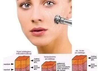 Gabinet Ingenium - mikrodermabrazja - twarz - z regenerującym detoksykującym serum i terapią mikroprądami