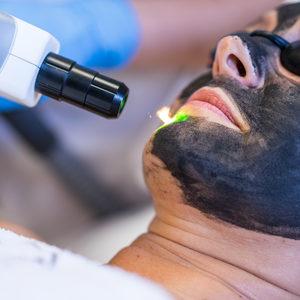 Yasumi Gorzów Wyszyńskiego - Carbon Peel- Laserowy peeling węglowy Black Doll