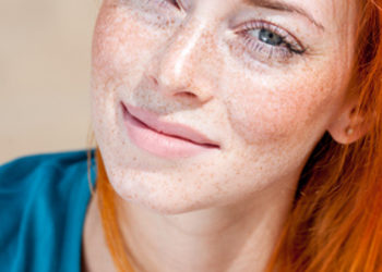 ESTETI-MED - redukcja rumienia na policzkach